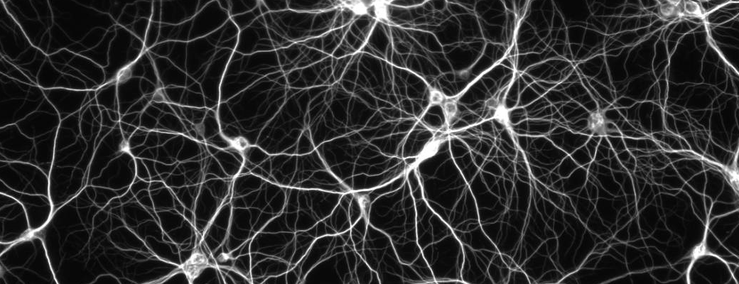 Brain Neuron